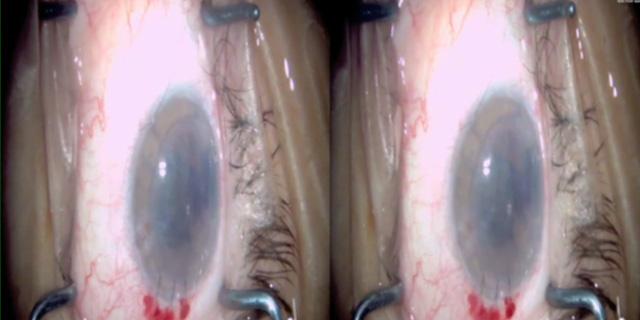 3D DSEK Surgery