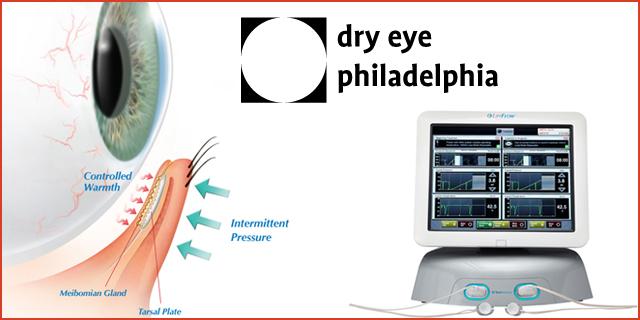 Treatment for Dry Eye